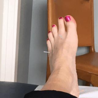 2 nåle i venstre fod